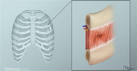 sore back muscles causes rib