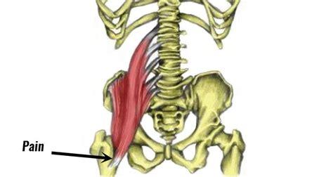 sore hip flexor muscles iliopsoas bursitis groin mass