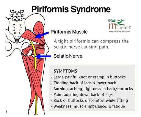 sore hip flexors and piriformis muscle injection side