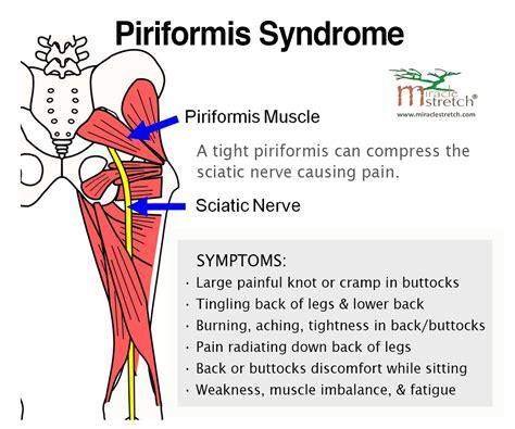 sore hip flexors and piriformis muscle spasm