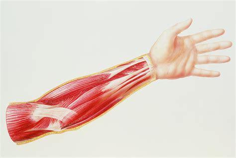 strained flexor muscle in forearm