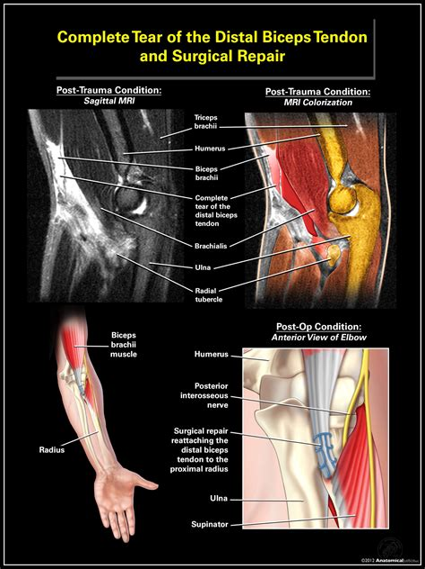 strained hip flexor rehab protocol for distal biceps tear on mri