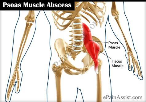 stretches for hip flexor psoas muscle abscess drainage icd