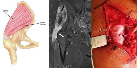 surgery for torn hip muscle repair surgery