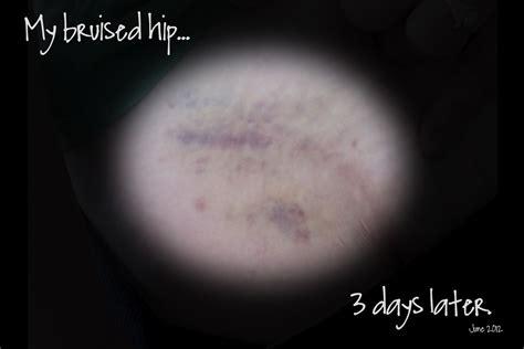 swollen hip flexors bruises treatment of
