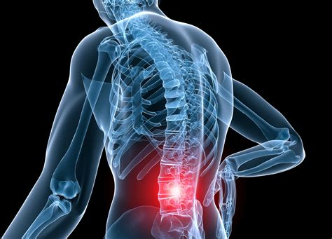 symptoms of back strain injury pictures