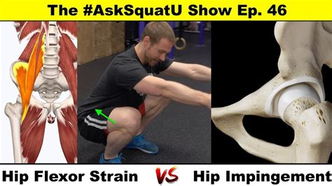 symptoms of hip flexor impingement syndrome