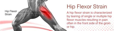 symptoms of strained hip flexor muscles
