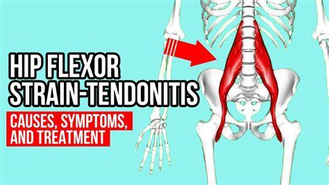 symptoms of strained hip flexor muscles pain