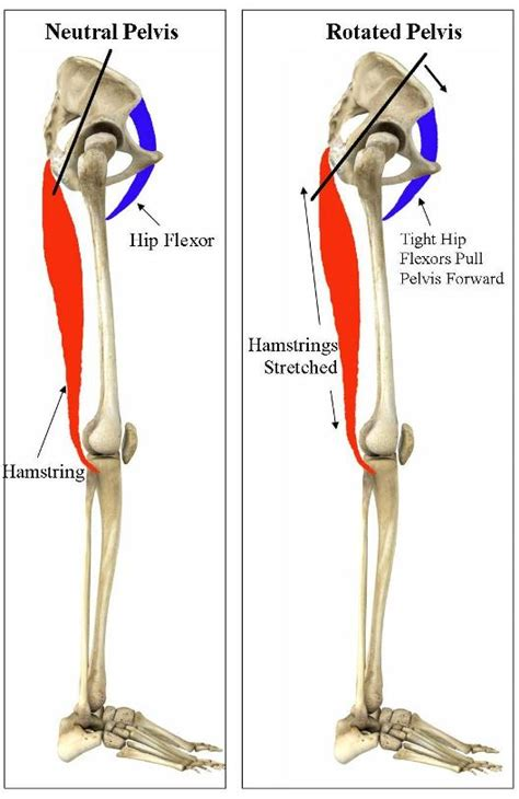 symptoms of tight hip flexors and hamstrings muscle