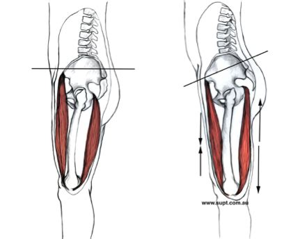 symptoms of weak hamstrings after squats i get pain when i lay