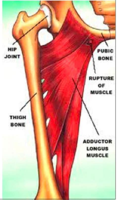 tendonitis hip flexor groin ligaments tendons
