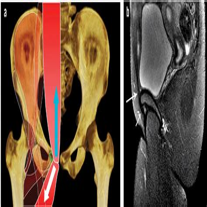 tendonitis hip flexor treatment sports hernia mri findings