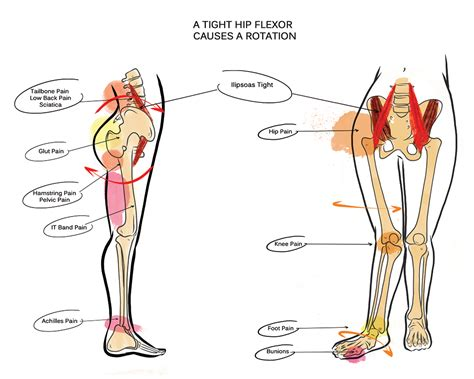 tight hip flexor diagrams of volcanoes changing