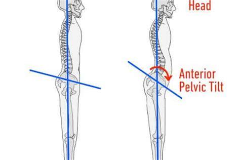 tight hip flexors cause anterior pelvic tilt
