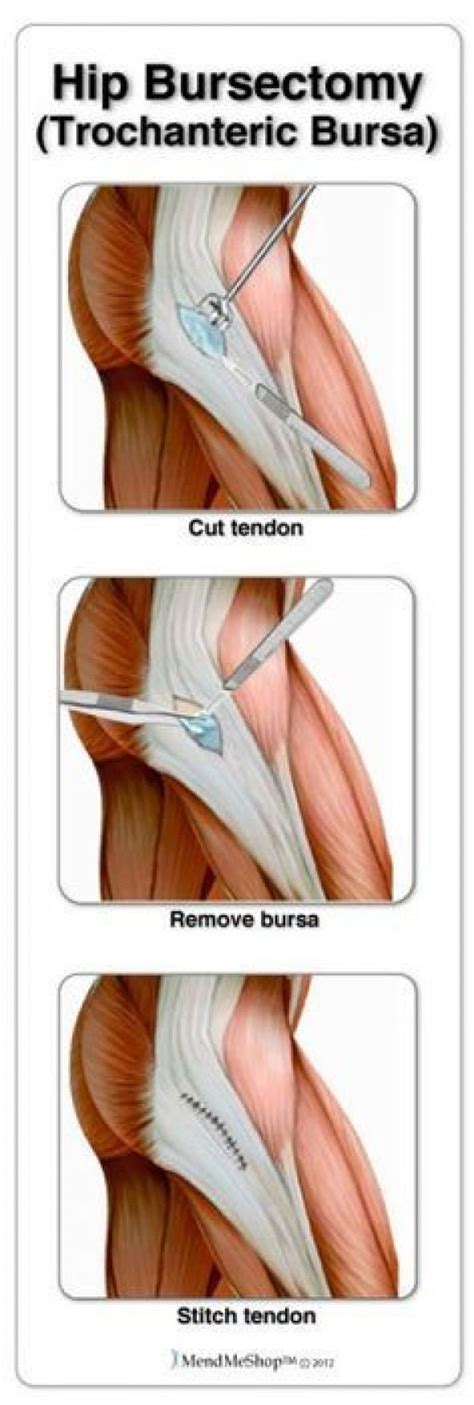 torn hip flexor treatment chiropractor schooling information systems