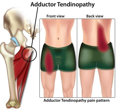 treatment for hip adductor tendonitis symptoms