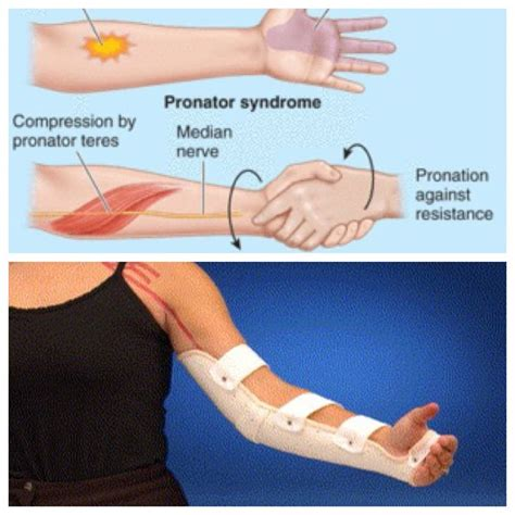 ulnar nerve in elbow flexion muscles used in swimming