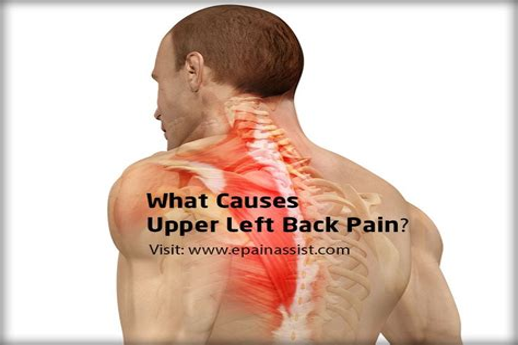 upper left side back pain in women
