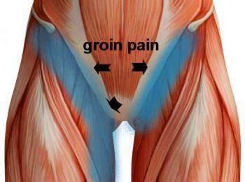 upper thigh hip flexeril pain patch