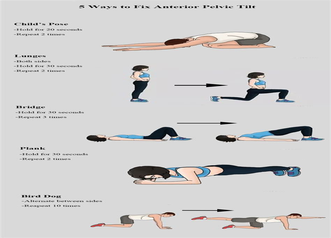 ways to fix anterior pelvic tilt