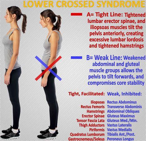 weak glutes cause tight hip flexors