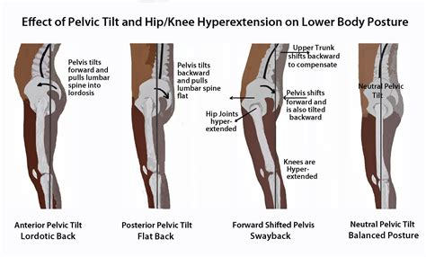 weak hip flexors and pelvic tilt video male