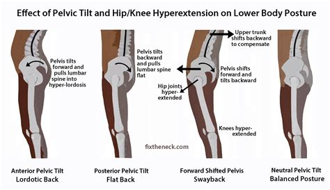 weak hip flexors and pelvic tilts videos