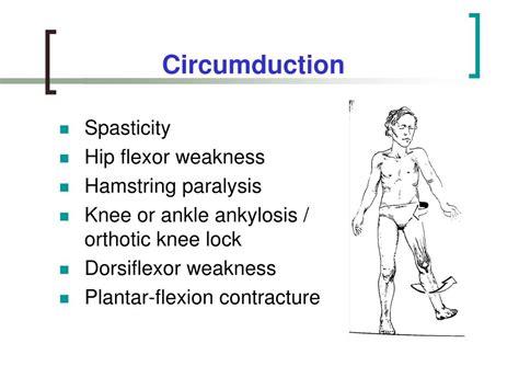 weak hip flexors during gait circumduction movement of arm