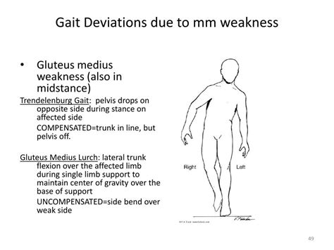weak hip flexors during gait circumduction vs rotation and revolution