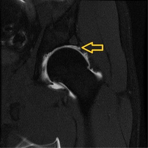 what causes hip flexor pain after hip arthrogram with labral tear