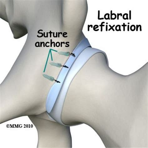 what causes hip flexor pain after hip labral repair icd