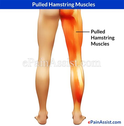 what causes pain in both hamstrings cramp