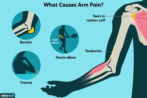 what causes sore arm muscles for no reason