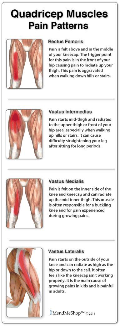 what causes sore quad muscles for no reason