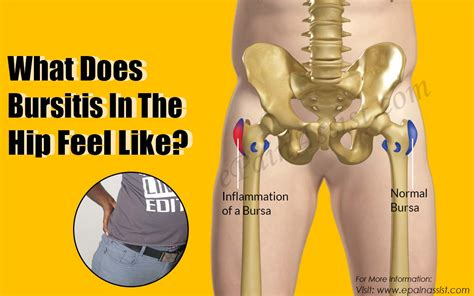 what does hip pain feel like