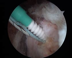 what is hip flexor tendonitis after labral repair anchors