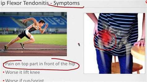 what is hip flexor tendonitis icd-9