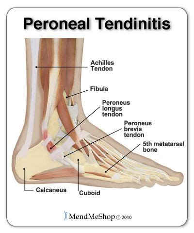 what is hip flexor tendonitis in dancers feet arch