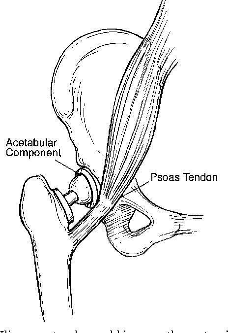 where is the hip flexor muscles iliopsoas bursa removal