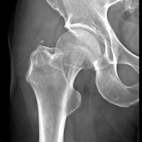 x ray calcific tendonitis hip surgery