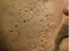 trou peau visage homme comment enlever les cicatrices d acn 233 m 233 dical sant 233