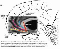 advancements in meta psychology a wiring diagram in the brain for depression