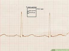 how to read an ekg 9 steps wikihow