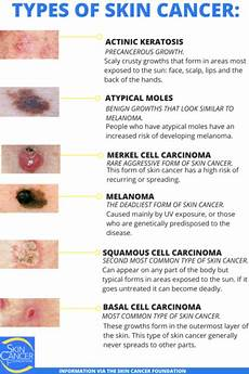 skin cancer types basal cell carcinoma bcc squamous cell carcinoma scc melanoma st