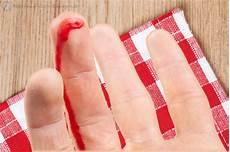 Blutflecken Entfernen Kleidung - blutflecken entfernen tipps hausmittel zur reinigung