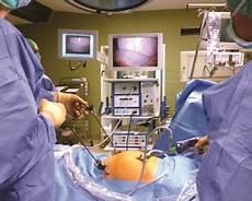 leistenbruch op wie lange krank laparoskopie bauchspiegelung netdoktor at