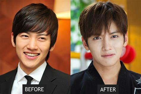 Kim Yoo Ri Plastic Surgery