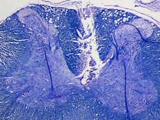 Luxol Fast Blue Stained Transverse Section Of A Cervical