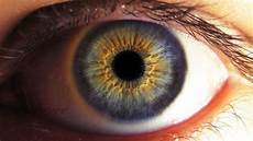 Augen Lasern Lassen Erfahrungsbericht Teil 1